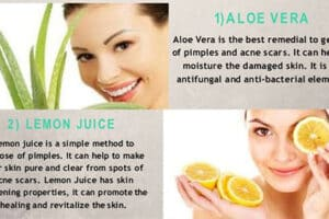 How to remove pimples at home